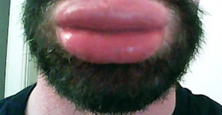 MyBigLips: tutti pazzi su  X-Tube per l'uomo dalla bocca più botoxata del mondo