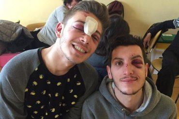 Milano, condanne fino a 5 anni per gli autori del pestaggio omofobo al BORGO