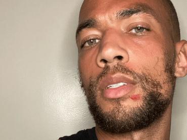 Kendrick Sampson di Insecure in piazza contro la polizia, le ferite choc da proiettili di gomma – foto e video