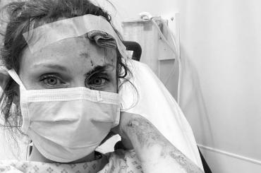 Sophie Ellis-Bextor cade dalla bici e finisce in ospedale, la foto social