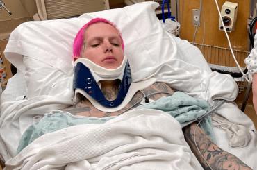 Jeffree Star, gravissimo incidente d'auto: schiena rotta e alcuni mesi per rimettersi in piedi